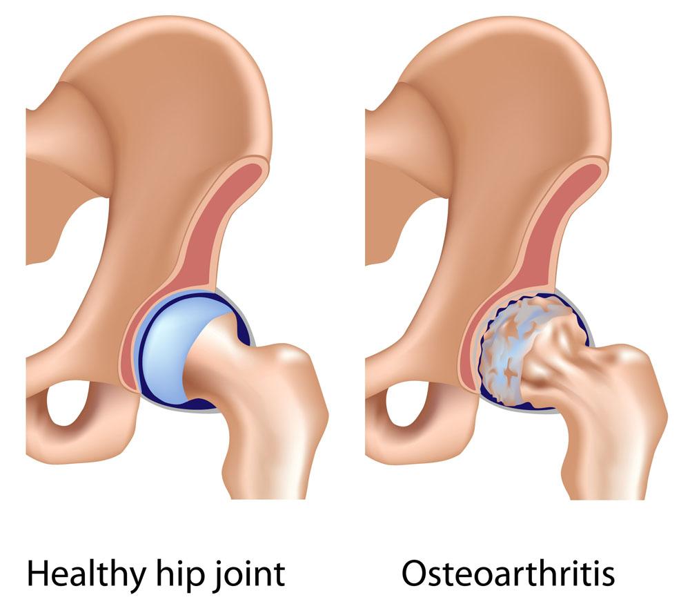 Csípőfájdalom – Ágyékba sugárzó fájdalom okai - Súlypont Ízületklinika Csípő hajlító fájdalom